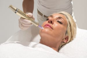 Microneedling at Med Spa Ibiza