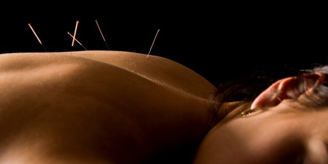 Ibiza Balance Therapy: Accupuncture